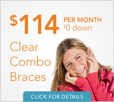 Clear Combo Braces Financing Offer